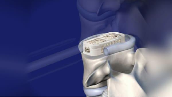 arthrodese lombaire laterale arthrodese lombaire par voie laterale chirurgie du rachis espace francilien du rachis clinique du rachis versailles paris 1
