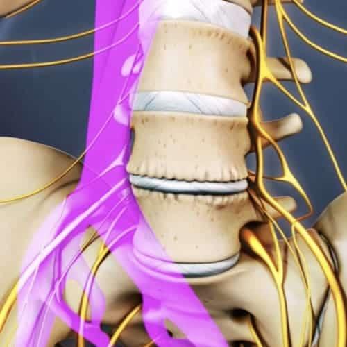 arthrodese lombaire par voie anterieure arthrodese lombaire voie anterieure pourcentage de reussite chirurgie du rachis espace francilien du rachis clinique du rachis versailles paris 4