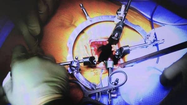 arthrodese lombaire par voie anterieure arthrodese lombaire voie anterieure pourcentage de reussite chirurgie du rachis espace francilien du rachis clinique du rachis versailles paris
