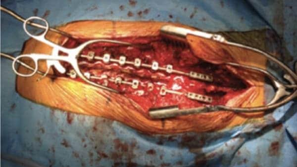 arthrodese lombaire par voie posterieure arthrodese lombaire posterieure chirurgie du rachis espace francilien du rachis clinique du rachis versailles paris 1