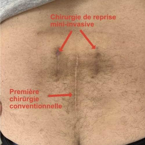 arthrodese lombaire par voie posterieure arthrodese lombaire posterieure chirurgie du rachis espace francilien du rachis clinique du rachis versailles paris 2