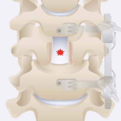 corporectomie cervicale definition corporectomie vertebrale definition corporectomie lombaire chirurgie du rachis espace francilien du rachis clinique du rachis versailles paris 2