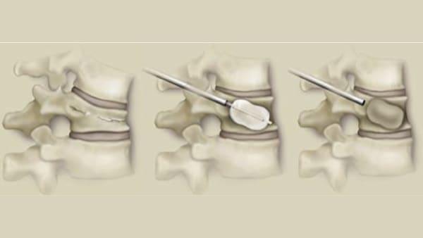 cyphoplastie par ballonnets kyphoplastie vertebroplastie kyphoplastie lombaire chirurgie du rachis espace francilien du rachis clinique du rachis versailles paris 2