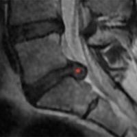 hernie discale operation hernie discale lombaire traitement hernie discale traitement hernie discale l5 s1 espace francilien du rachis clinique du rachis versailles paris 7