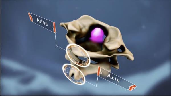 hernie discale symptome hernie discale l5 s1 hernie discale operation hernie discale cervicale espace francilien du rachis clinique du rachis versailles paris 2
