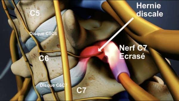 hernie discale symptome nevralgie cervico brachiale hernie discale operation hernie discale cervicale espace francilien du rachis clinique du rachis versailles paris 4