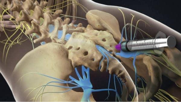 infiltration dos lombaire infiltration du dos infiltration rachis lombaire chirurgie du rachis espace francilien du rachis clinique du rachis versailles paris 2