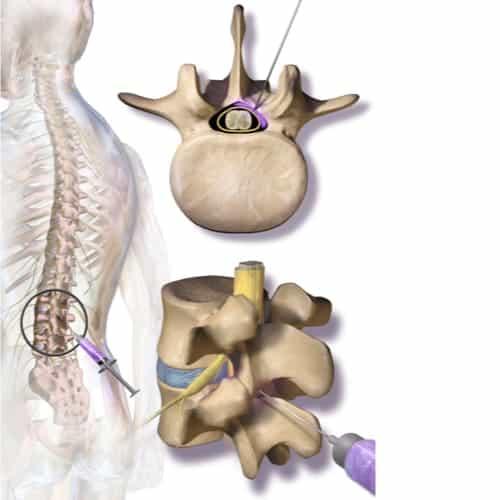 infiltration rachis cervical infiltration du rachis lombaire infiltration dos avis chirurgie du rachis espace francilien du rachis clinique du rachis versailles paris 1