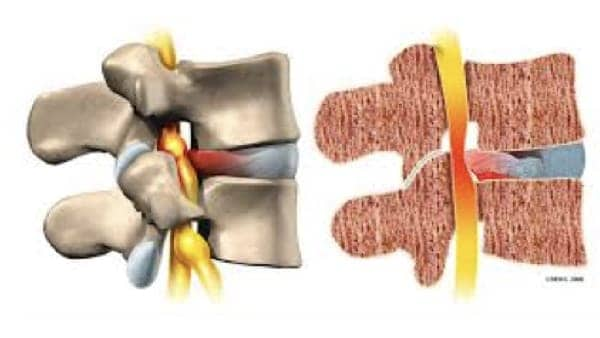 laminectomie lombaire laminectomie definition laminectomie cervicale reeducation chirurgie du rachis espace francilien du rachis clinique du rachis versailles paris 1