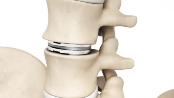 lombalgie def une lombalgie traitement lombalgie que faire lombalgie sciatique lombalgie aigue que faire espace francilien du rachis clinique du rachis versailles paris 2