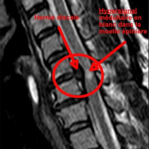 myelopathie cervico arthrosique myelopathie cervicarthrosique et fatigue myelopathie cervicarthrosique irm espace francilien du rachis clinique du rachis versailles paris