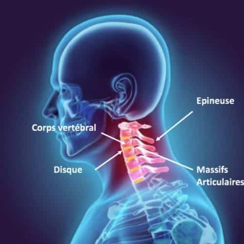 nevralgie cervico brachiale traitement nevralgie cervico brachial nevralgie cervico brachiale cause espace francilien du rachis clinique du rachis versailles paris 3