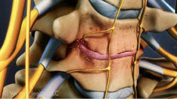prothese discale cervicale remboursement prothese discale avis chirurgie du rachis espace francilien du rachis clinique du rachis versailles paris 3