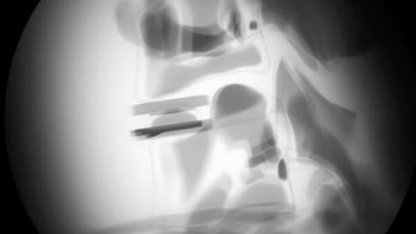 prothese discale cervicale remboursement prothese discale avis chirurgie du rachis espace francilien du rachis clinique du rachis versailles paris 4