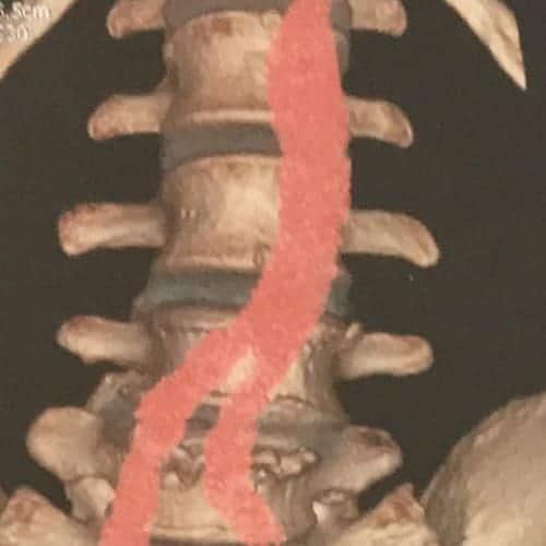 prothese discale lombaire prix chirurgie prothese discale lombaire reeducation chirurgie du rachis espace francilien du rachis clinique du rachis versailles paris 4