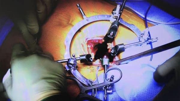 prothese discale lombaire prix chirurgie prothese discale lombaire reeducation chirurgie du rachis espace francilien du rachis clinique du rachis versailles paris 7