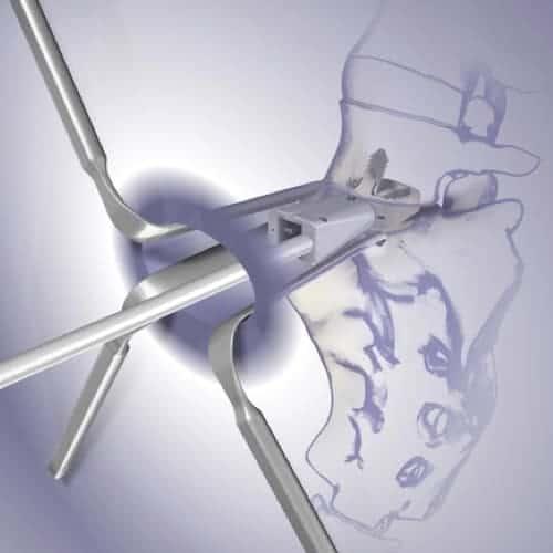 prothese discale lombaire prix chirurgie prothese discale lombaire reeducation chirurgie du rachis espace francilien du rachis clinique du rachis versailles paris