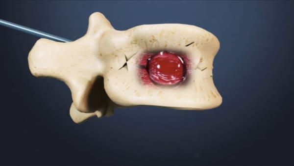 reeducation apres cimentoplastie cancer cimentoplastie lombaire chirurgie du rachis espace francilien du rachis clinique du rachis versailles paris 1