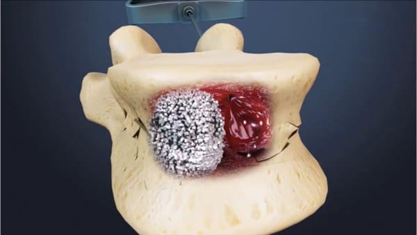 reeducation apres cimentoplastie cancer cimentoplastie lombaire chirurgie du rachis espace francilien du rachis clinique du rachis versailles paris 2