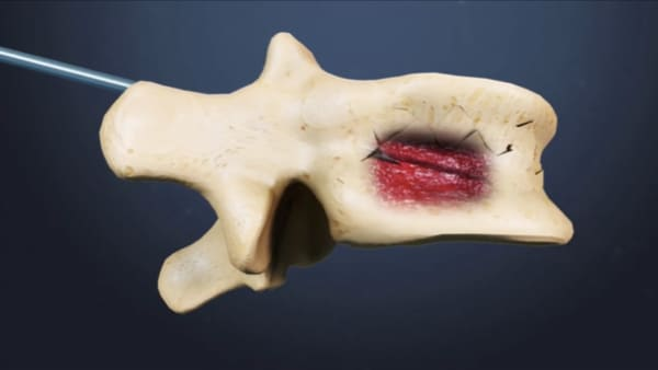 reeducation apres cimentoplastie cancer cimentoplastie lombaire chirurgie du rachis espace francilien du rachis clinique du rachis versailles paris 3