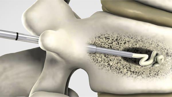 reeducation apres cimentoplastie cancer cimentoplastie lombaire chirurgie du rachis espace francilien du rachis clinique du rachis versailles paris