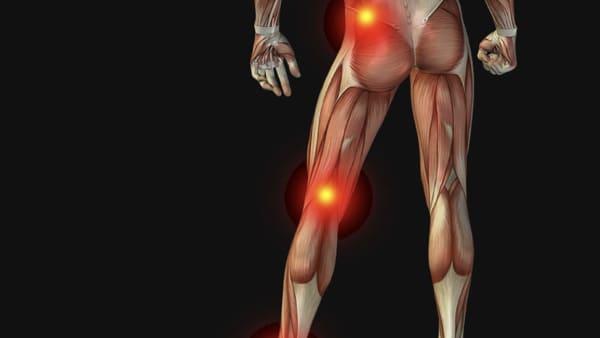sciatique traitement la sciatique dos cruralgie symptomes une cruralgie traitements cruralgie que faire espace francilien du rachis clinique du rachis versailles paris 1
