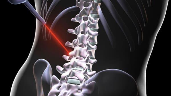 sciatique traitement la sciatique dos cruralgie symptomes une cruralgie traitements cruralgie que faire espace francilien du rachis clinique du rachis versailles paris 6