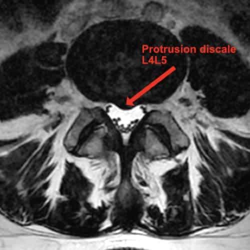 sciatique traitement la sciatique dos cruralgie symptomes une cruralgie traitements cruralgie que faire espace francilien du rachis clinique du rachis versailles paris 8