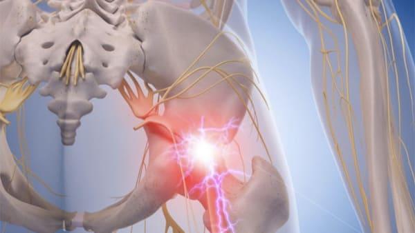 sciatique traitement la sciatique dos cruralgie symptomes une cruralgie traitements cruralgie que faire espace francilien du rachis clinique du rachis versailles paris