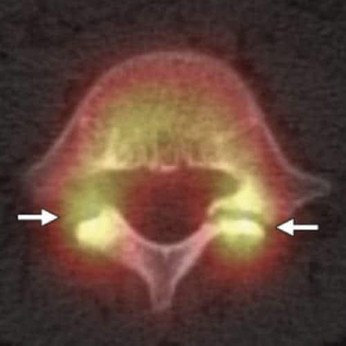 spondylolisthesis par lyse isthmique bilaterale spondylolisthesistraitement espace francilien du rachis clinique du rachis versailles paris 2