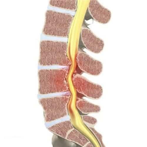 stenose lombaire severe stenose lombaire exercices stenose definition mal de dos lombaire espace francilien du rachis clinique du rachis versailles paris 1