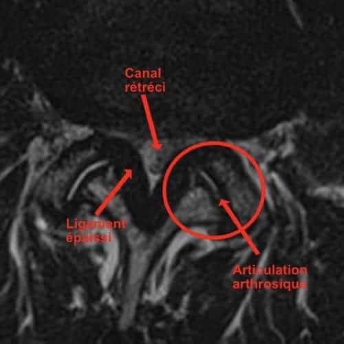 stenose lombaire severe stenose lombaire exercices stenose definition mal de dos lombaire espace francilien du rachis clinique du rachis versailles paris 3